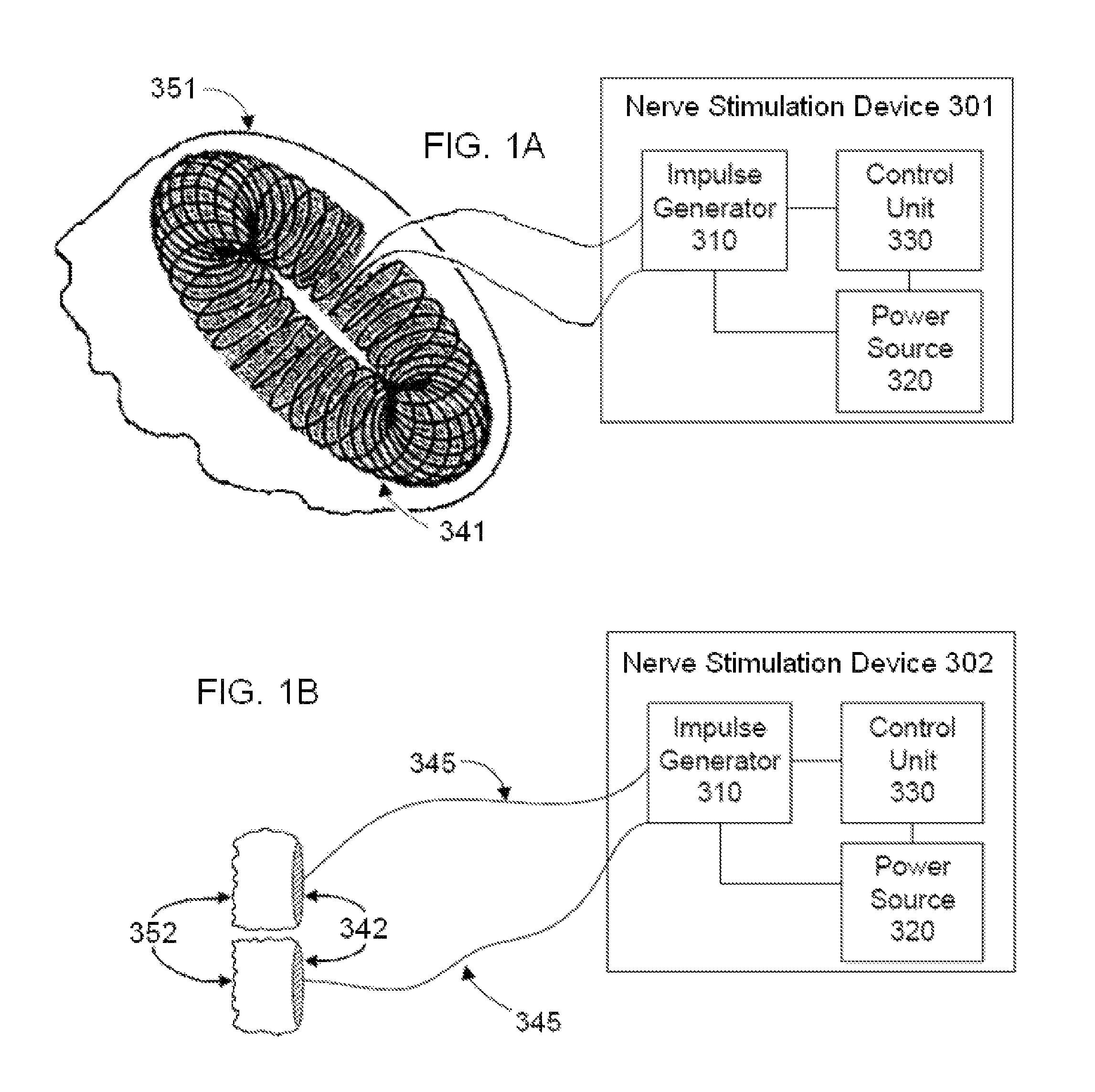 Patent Us 8676330 B2 1996 Lowe 170 Basic Boat Wiring Diagram Images