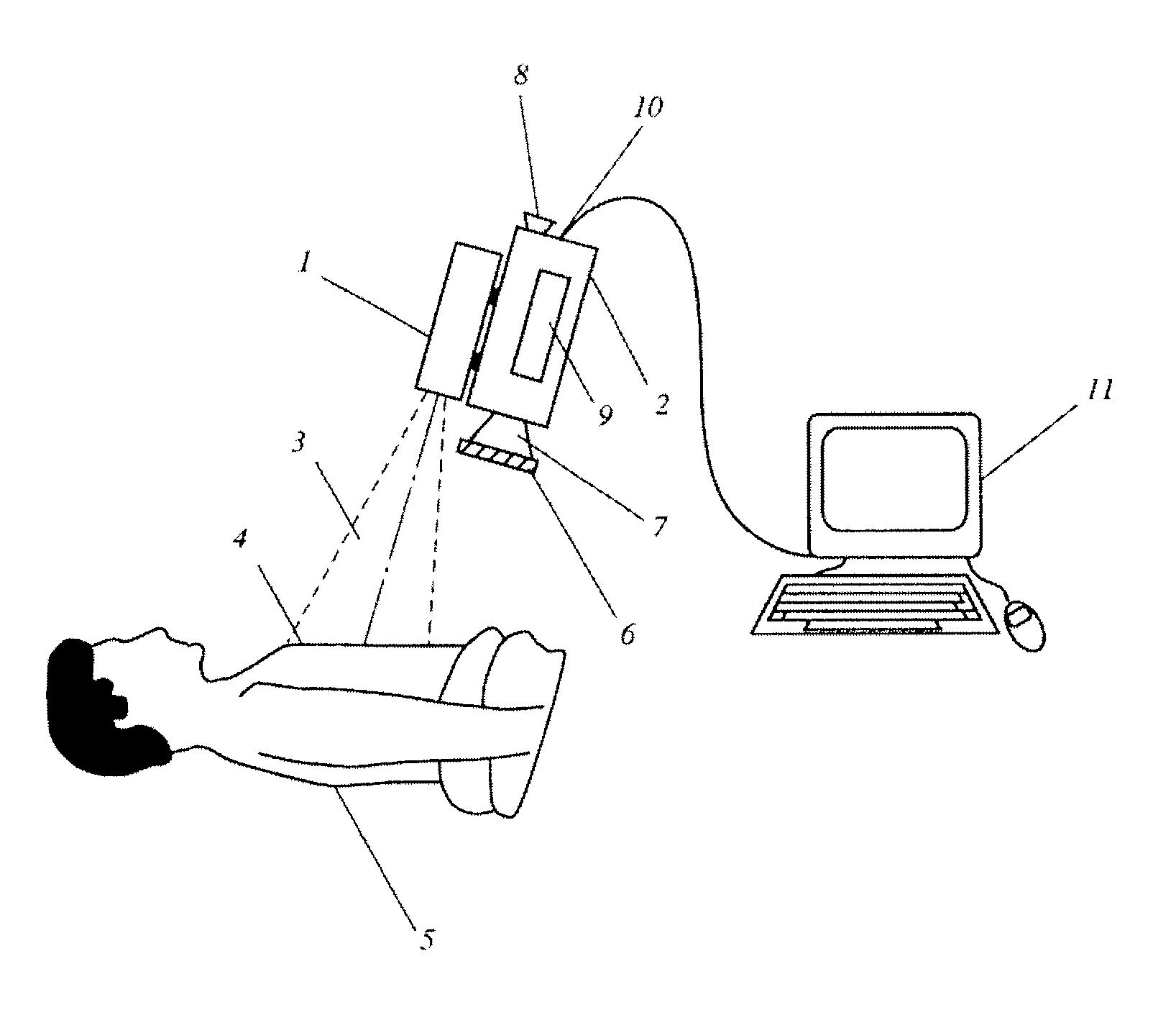 Patent US 9,936,887 B2