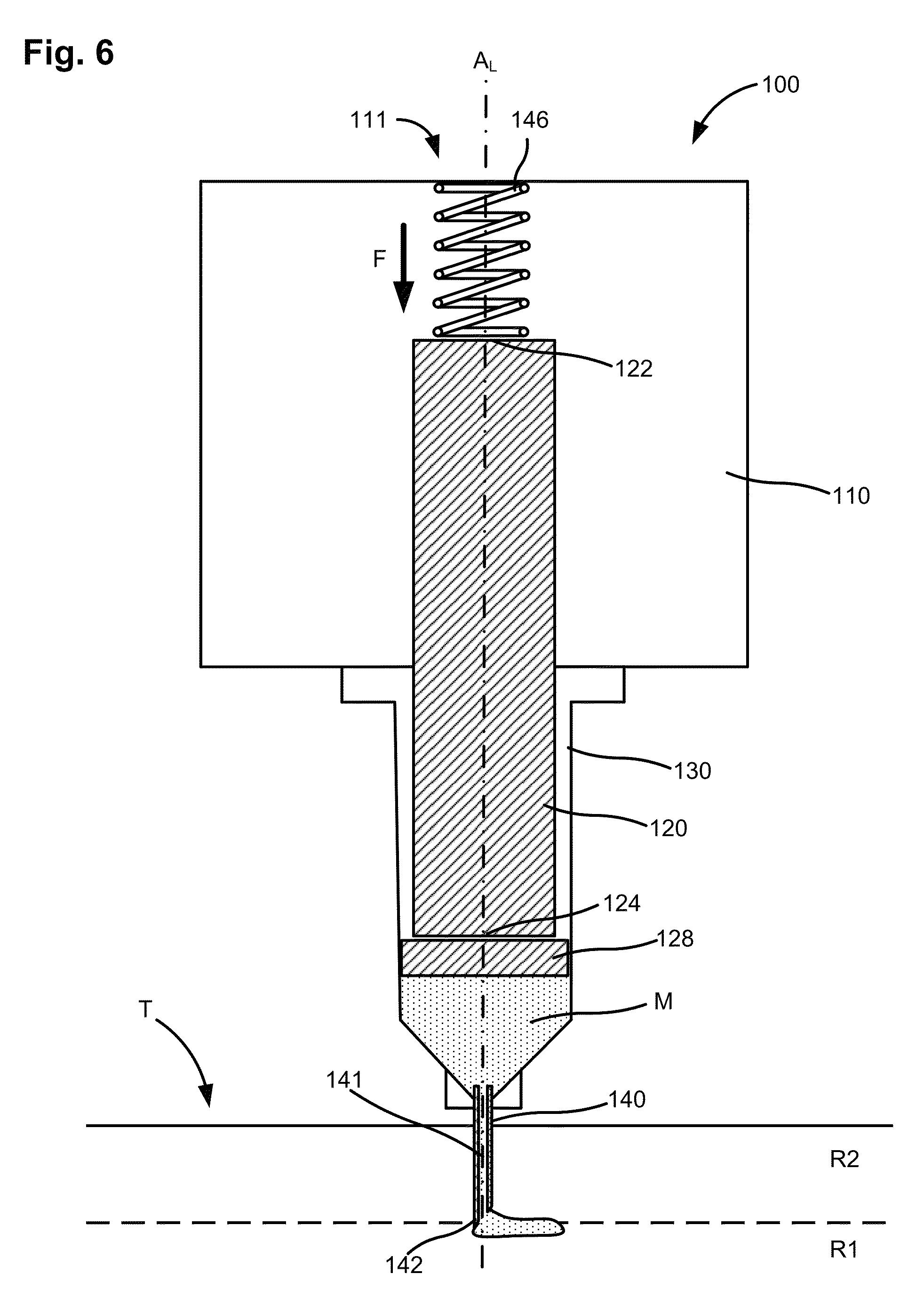 Patent US 9,180,047 B2 on