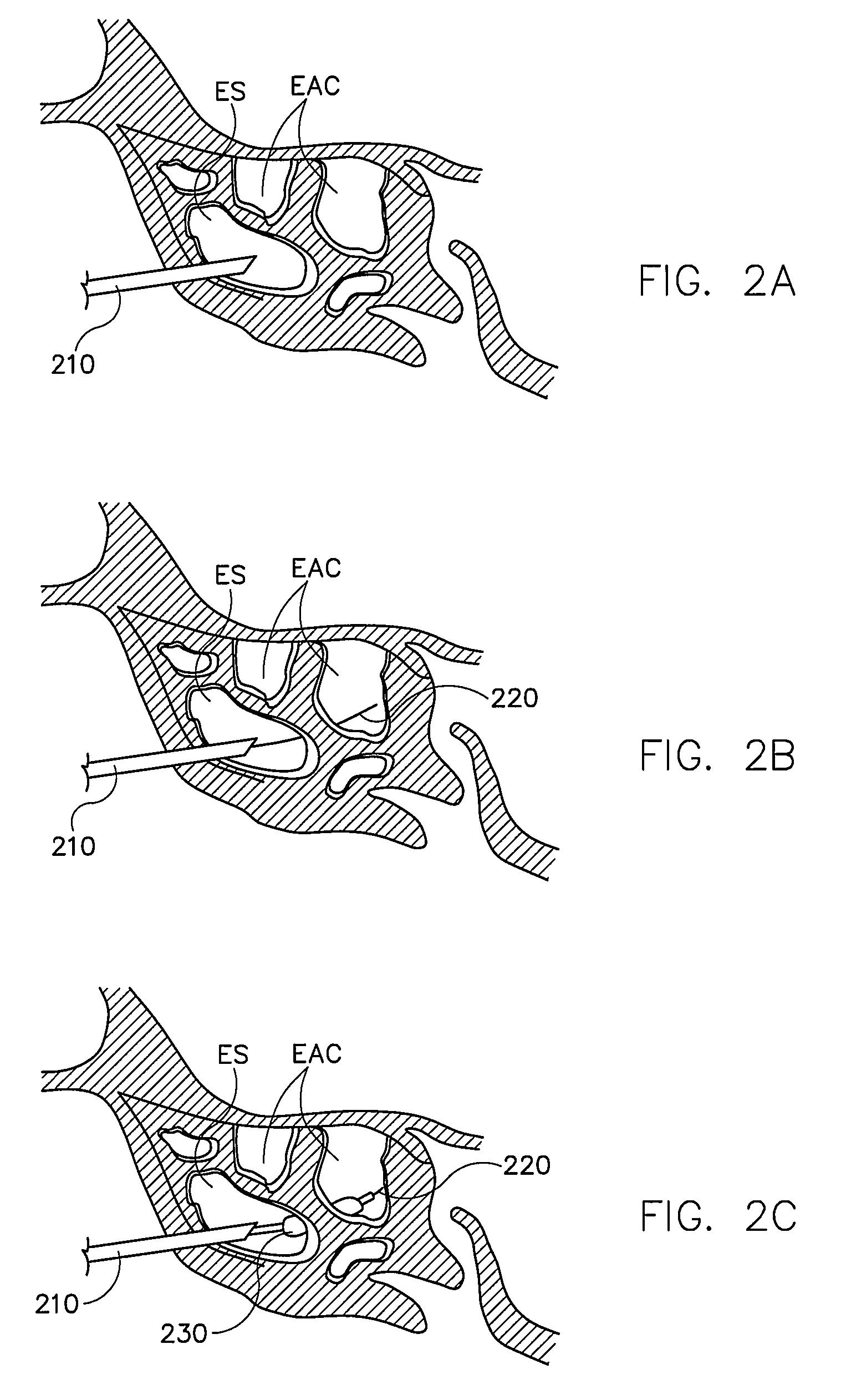 Patent US 9,861,793 B2