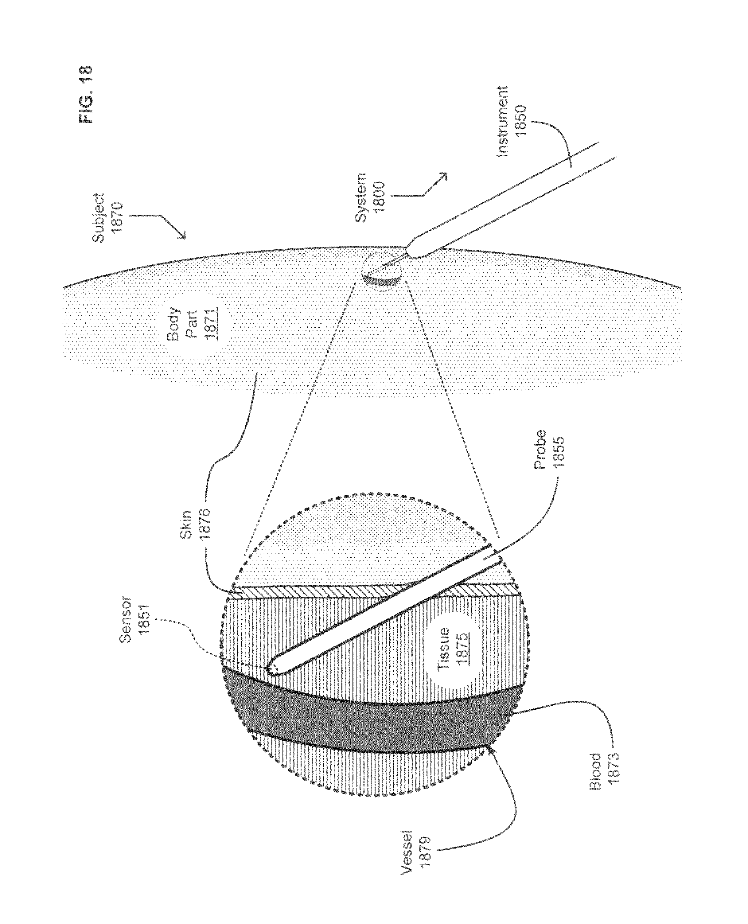 Patent Us 8870813 B2 64 Custom 880 Wiring Harness Images