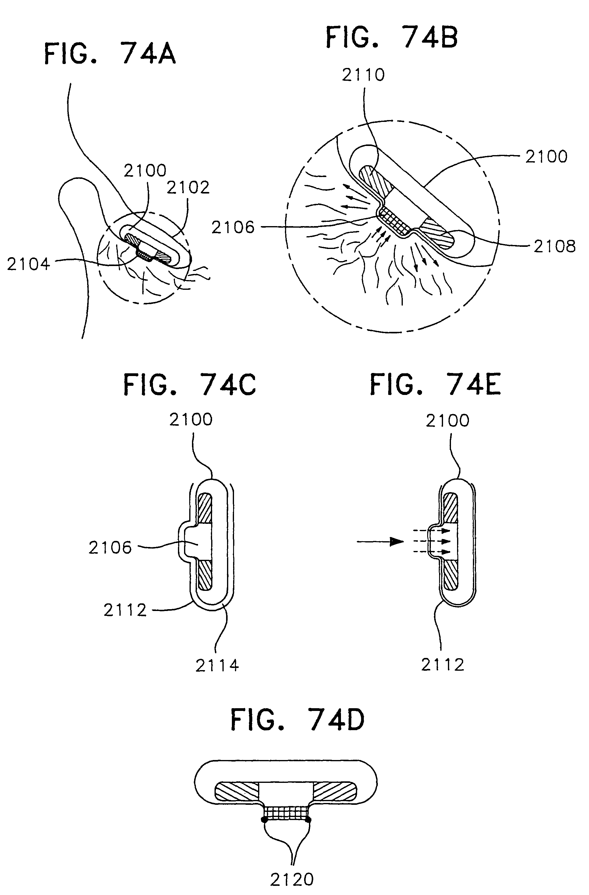 patent us 7 756 559 b2 Diagram of Fundus patent images