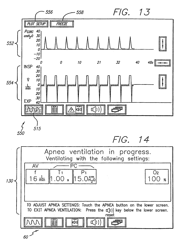 Patent US 8,555,882 B2