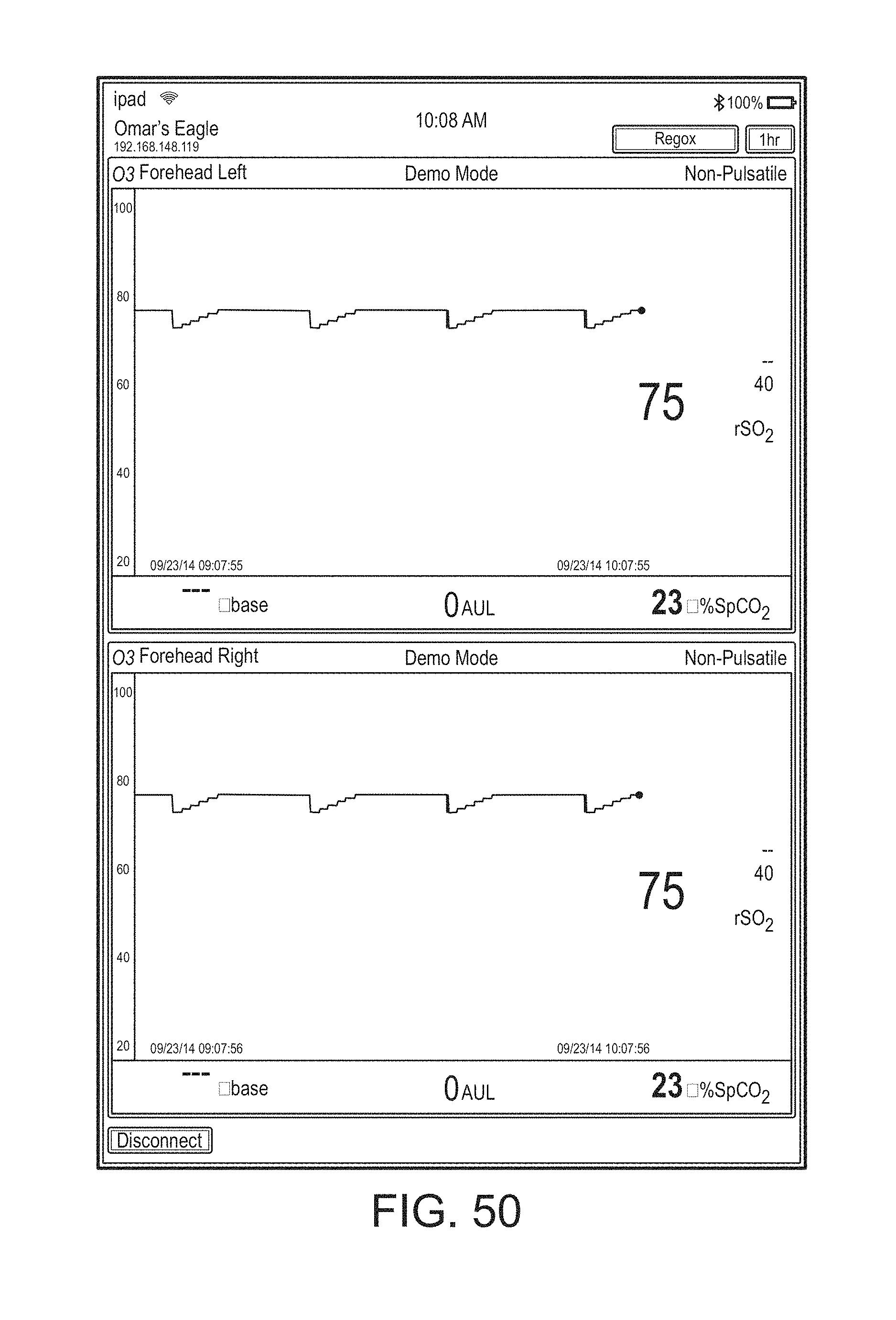 Patent US 9,943,269 B2